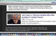 John Kerry's Broken Thighbone in France- More Shenanigans from Skull and Bones Alumni?